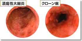 「潰瘍性大腸炎」の画像検索結果